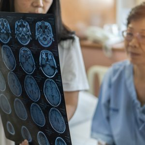 Don't Delay Emergency Stroke Care
