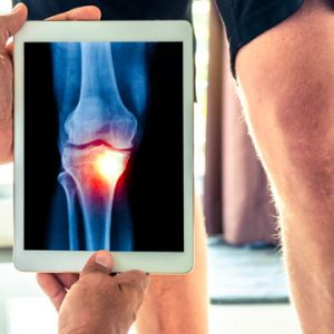 Don't Delay Hip and Knee Surgery